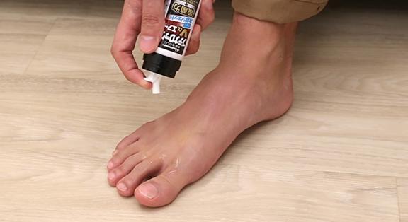 足の指の間がカサカサした水虫・足うらなど広範囲の水虫
